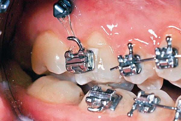 брекеты опираются на миниимпланты