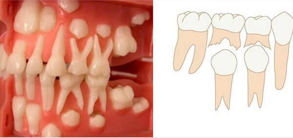 как долго растут коренные зубы после выпадения временных молочных