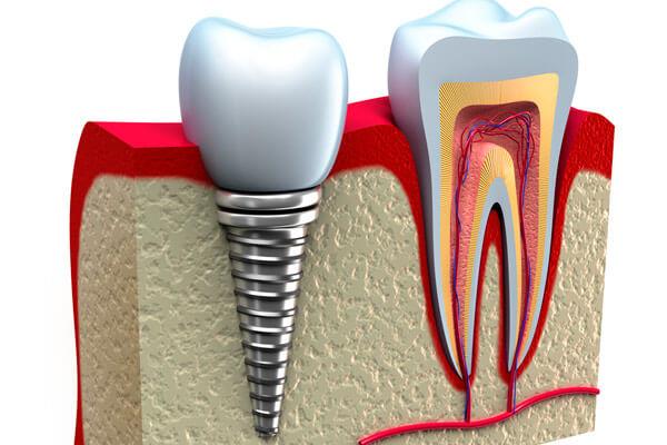 установка жевательного зуба за один день