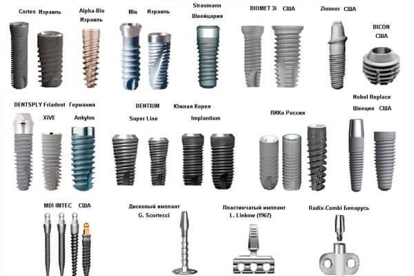 какие керамические импланты бывают