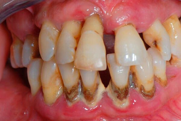 почему болит передний верхний зуб