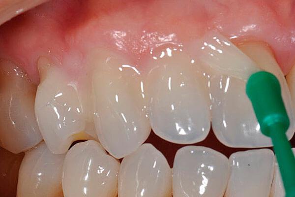 болит вылеченный зуб после пломбировки каналов