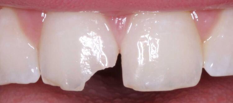 Откалываются зубы, что делать, если откололся кусочек зуба 78