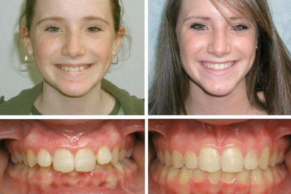 брекеты у девушек: фото до и после