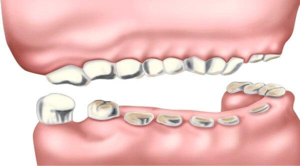 зубы нижней челюсти сточены