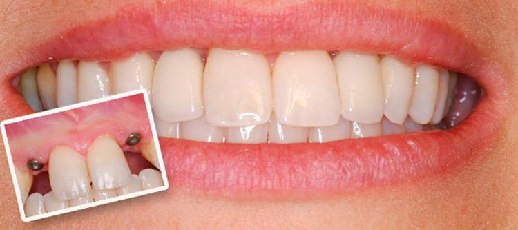 срок службы имплантов зубов зависит от ухода