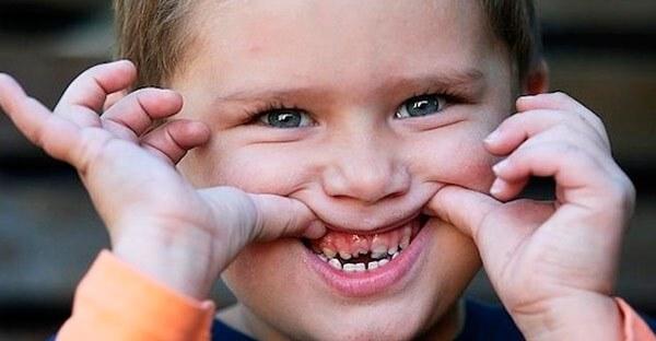 у годовалого ребенка появился черный налет на зубах