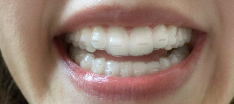 ортодонтические каппы invisalign