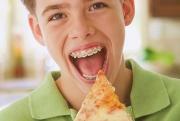 что нельзя есть с брекетами на зубах