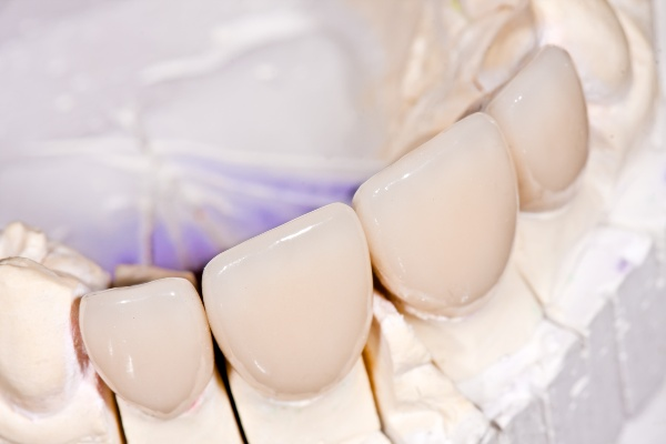 Использование коронок в стоматологии