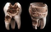выращивание зубов у человека