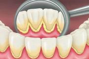 Как можно убрать зубной камень в домашних условиях