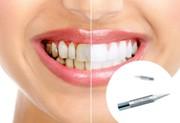 Особенности карандаша для отбеливания зубов Luxury Whitepro