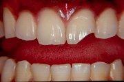 Способы наращивания передних зубов