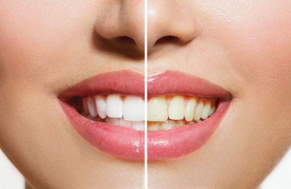 Реальные отзывы об отбеливании зубов содой