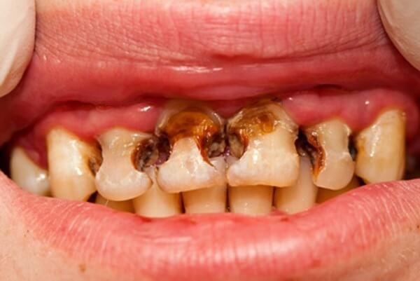 Причины разрушения зубов у детей