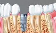Какой срок службы имплантов зубов