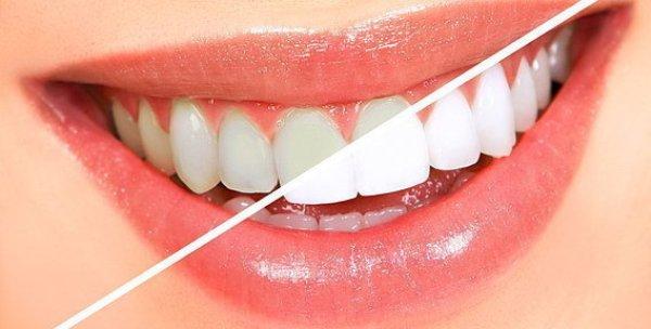 Карандаш для отбеливания зубов bright white купить