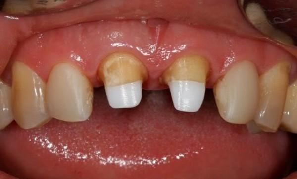 Молочных зубов протезирование детские клиники