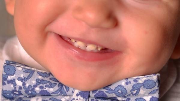 Причины возникновения гипоплазии эмали зубов