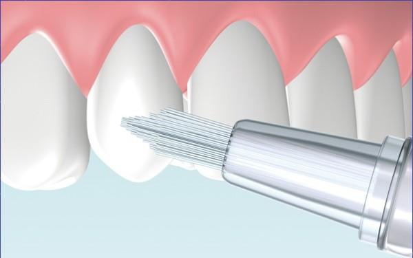 Карандаш для отбеливания зубов отзывы