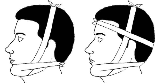 Перелом нижней челюсти лечение в домашних условиях