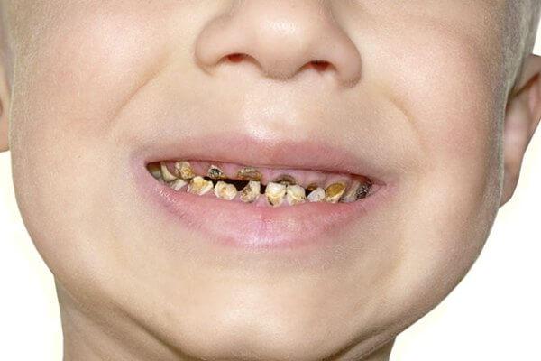 Протезирование молочных зубов у детей отзывы