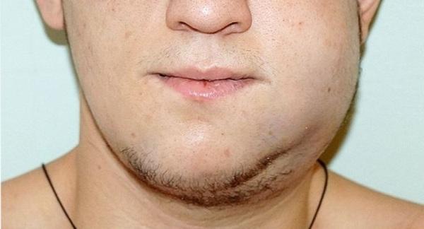 Ортопедическое лечение переломов нижней челюсти