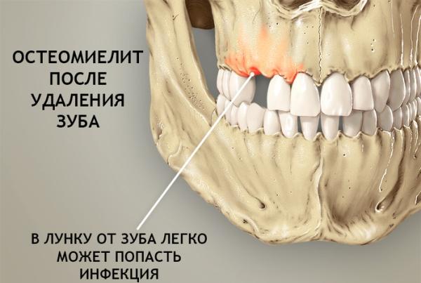 Симптомы и лечение хронического остеомиелита челюсти