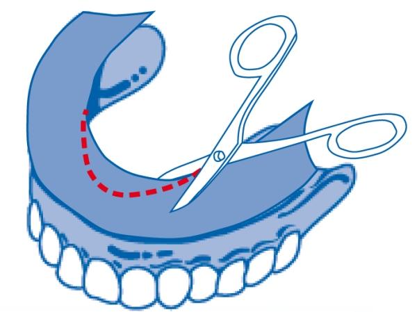 Фиксирующие прокладки для зубных протезов