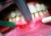 Проведение вестибулопластики на нижней челюсти