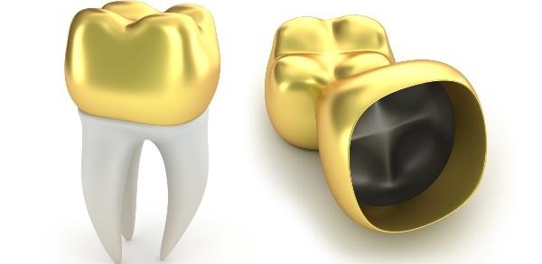 Золотая коронка на зуб цена