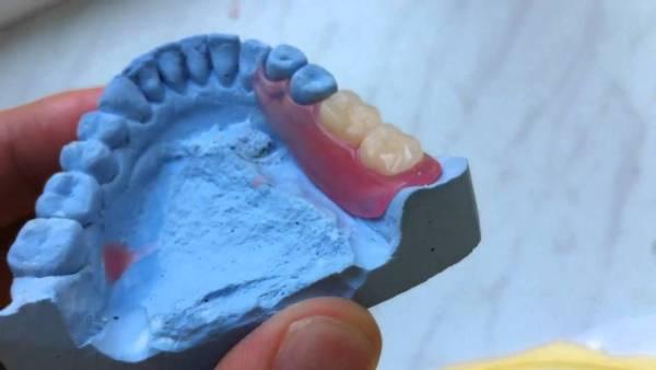 Зубы у детей изготовление протезов