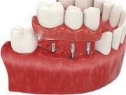 Имплантация зубов базальным методом