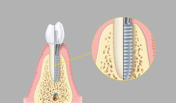 Импланты Schutz изготовление