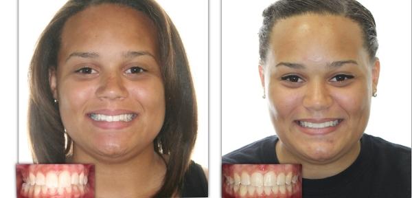Исправление глубокого прикуса фото до и после