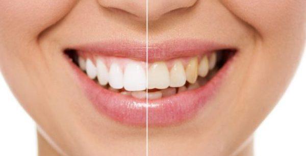 Избирательная шлифовка зубов