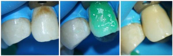 Лечение кариеса молочных зубов у детей видео