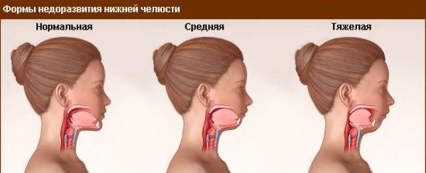 Маленькая нижняя челюсть у новорожденного