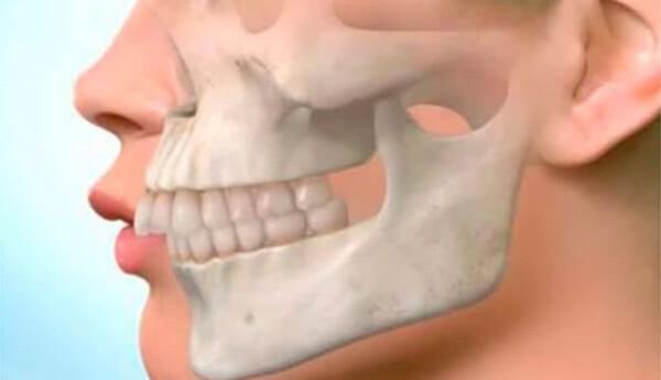 Исправление маленькой нижней челюсти у взрослых и детей