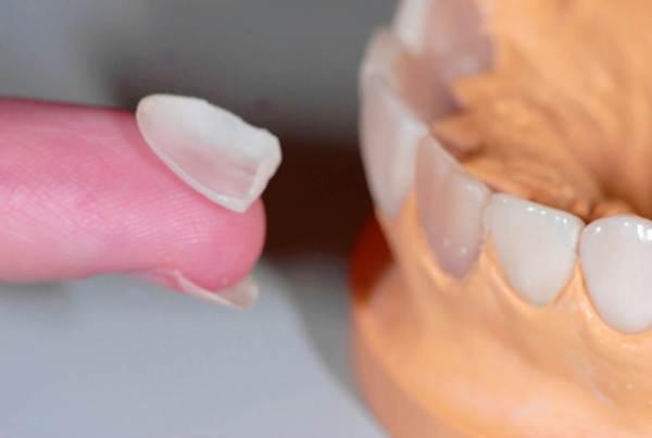 Микропротез зуба