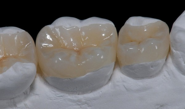 Как правильно подойти к выбору микропротеза для зуба