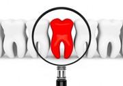Этапы одномоментной имплантации зубов