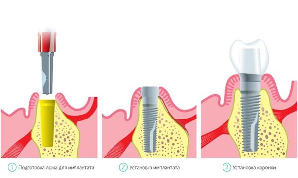 Одномоментная имплантация зубов отзывы
