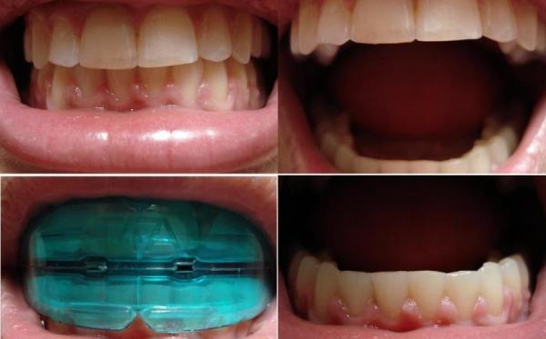 Ортодонтический трейнер отзывы
