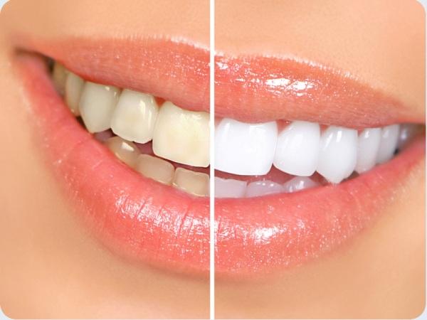 Цена отбеливания зубов opalescence boost