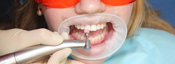 Шлифовка пломбы на передних зубах