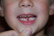 Сколько растет зуб после выпадения молочных зубов