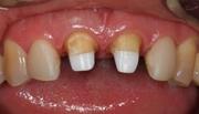 Сколько стоит вставить два передних зуба