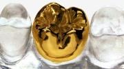 Установка золотой коронки на зуб